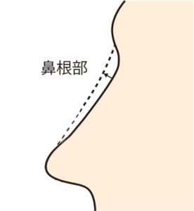 クレヴィエルを鼻根に入れる効果